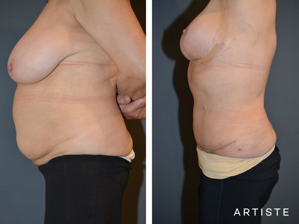 67 Year Old Abdominoplasty + Breast Lift