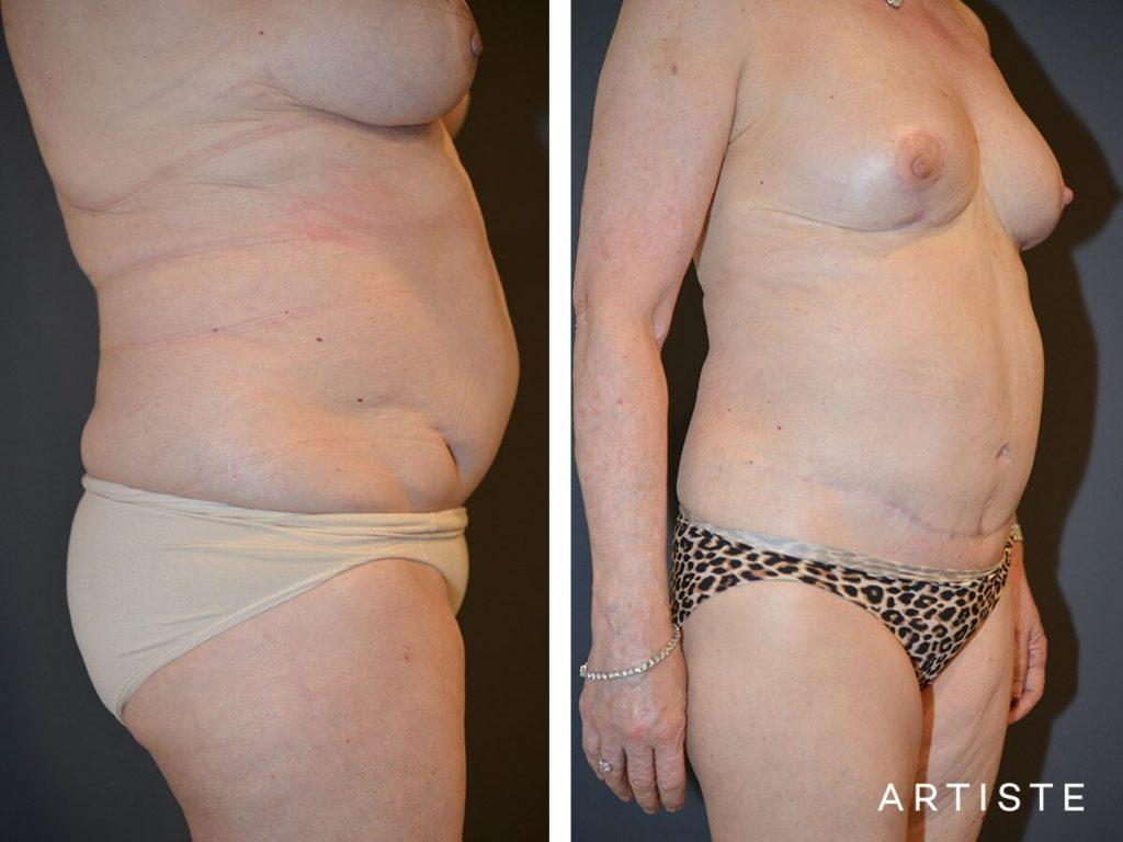 67 Year Old, Flat Tummy Plus, Abdominoplasty + Liposuction