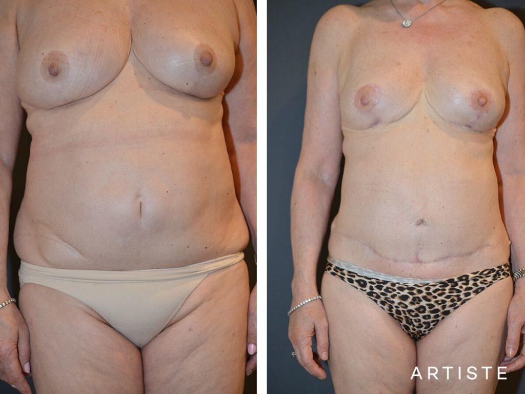 67 Year Old Abdominoplasty + Liposuction