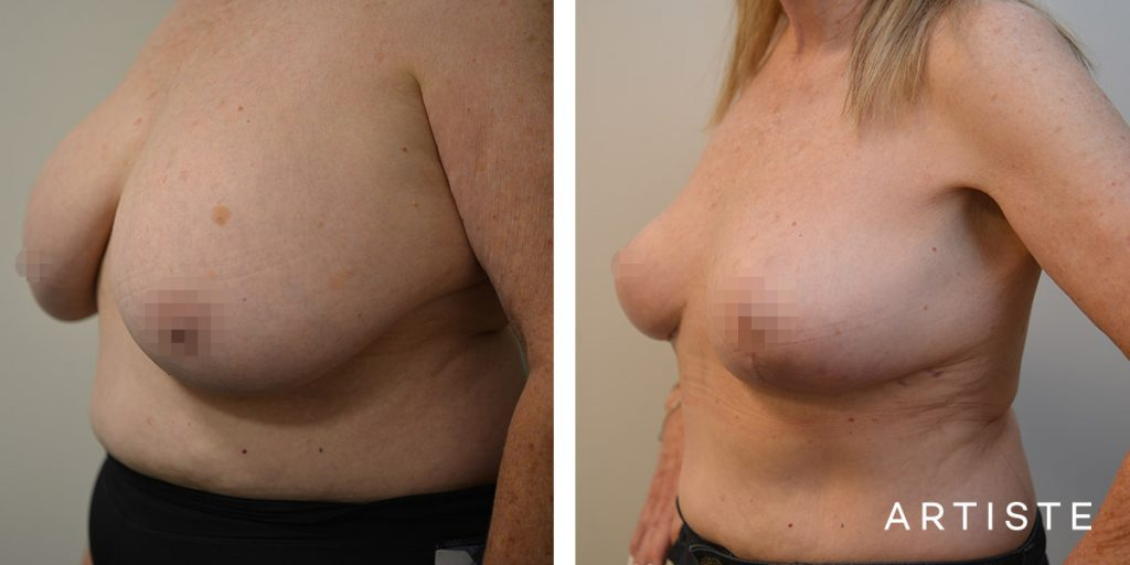 67 Year Old Removal of Implants + Lift
