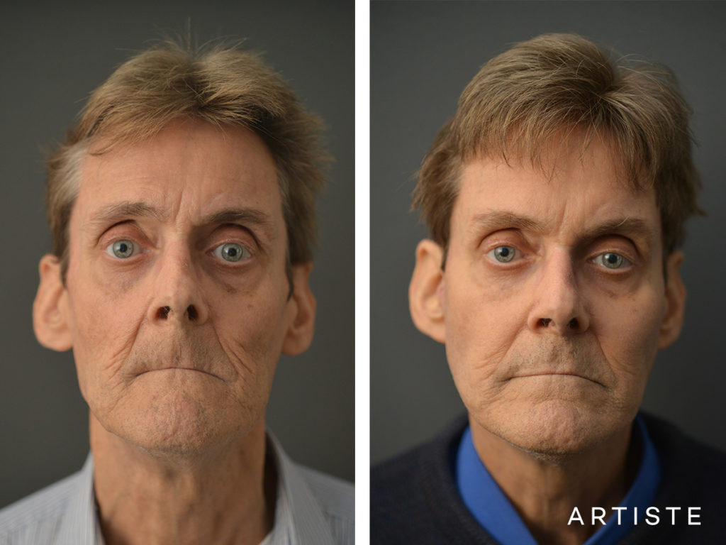 68 Years Old Male Facelift and Fat Grafting
