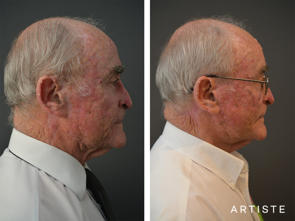 76 Years Old Male Facelift