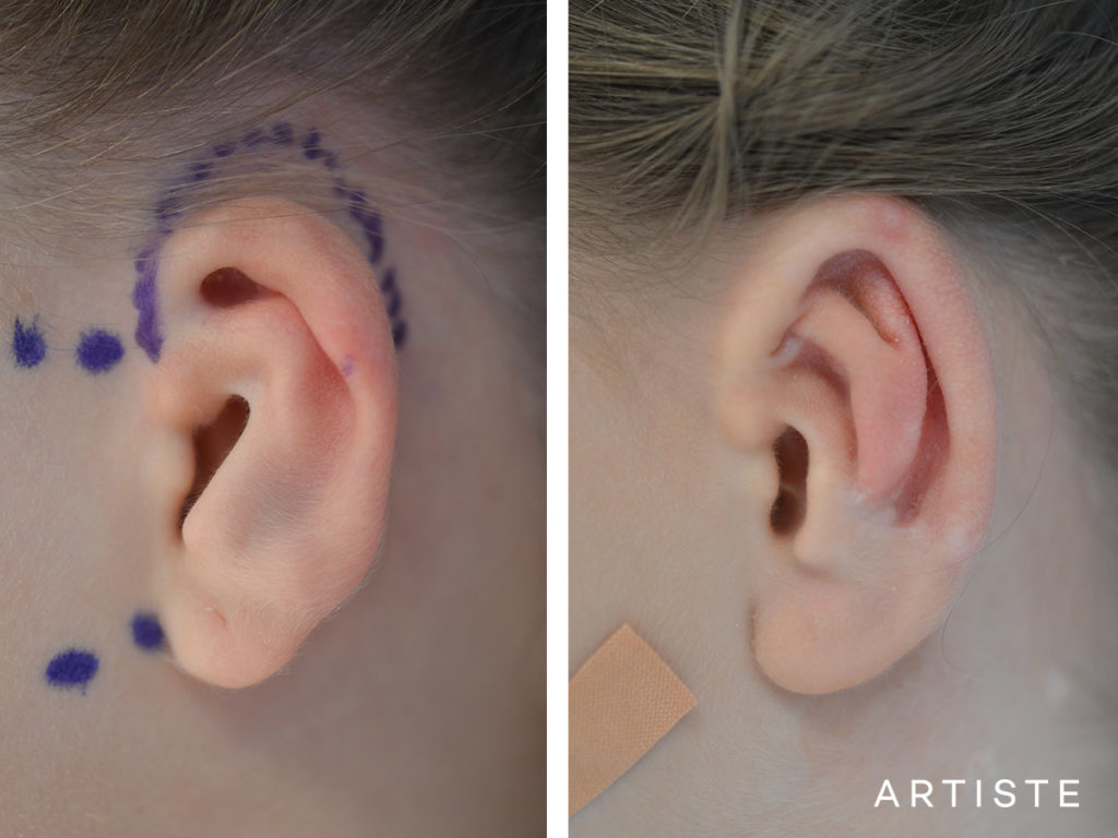 9 Year Old Ear Reconstruction Microtia
