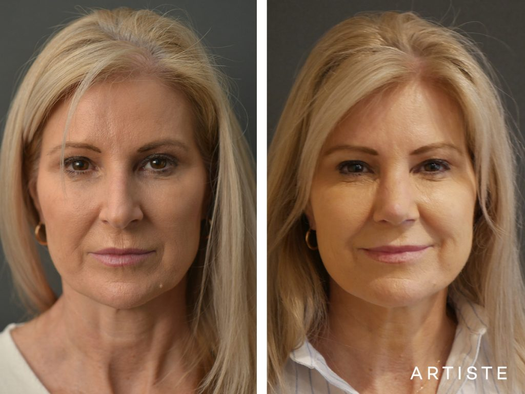55 Years Old Female Total Nose Rhinoplasty