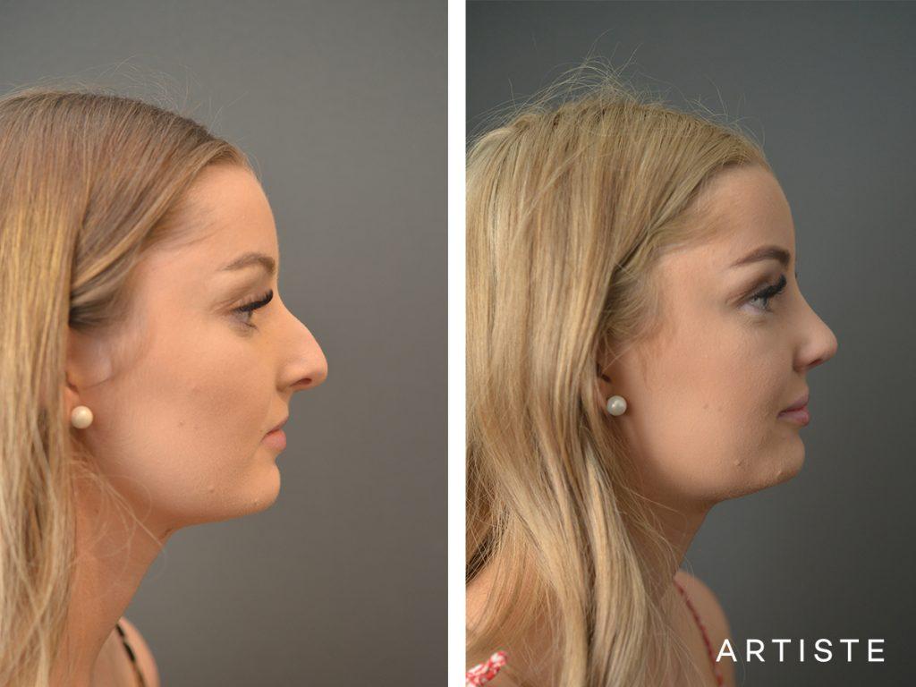 19 Year Old Profile Nose Rhinoplasty
