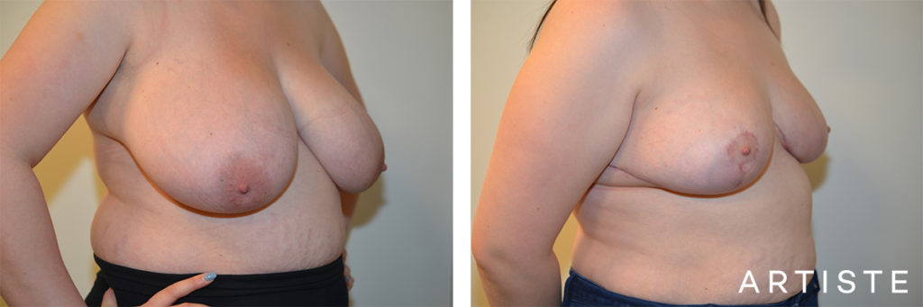26 Years Old Bilateral Breast Reduction