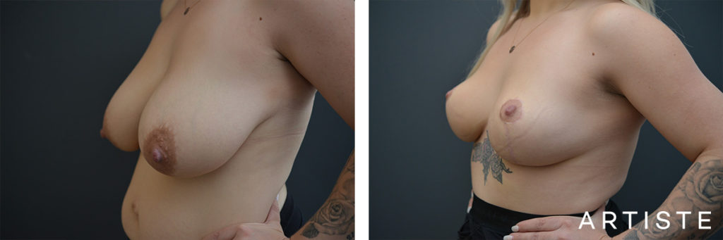 28 Years Old Breast Reduction and Lift