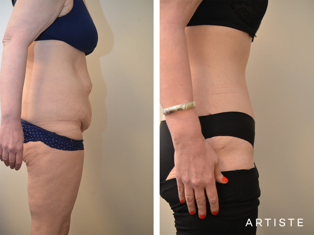 45 Years Old Abdominoplsty + Liposuction