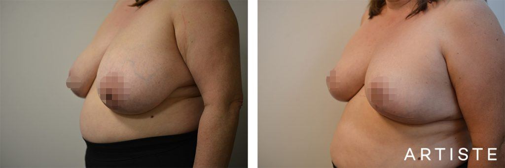 51 Years Old Bilateral Breast Reduction