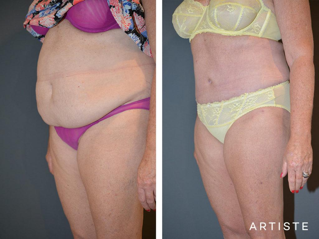 56 Year Old, Flat Tummy Plus, Abdominoplasty + Liposuction