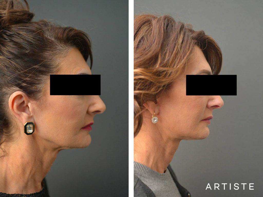 57 Year Old Ultimate Neck Lift