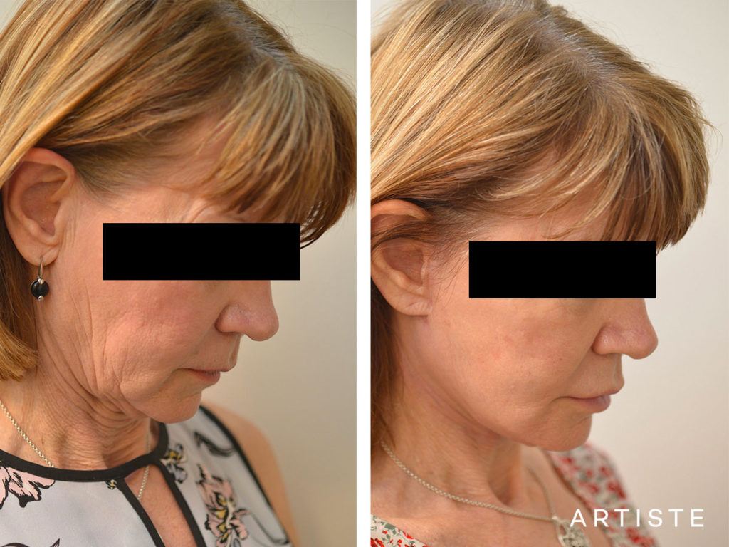 60 Year Old Ultimate Neck Lift