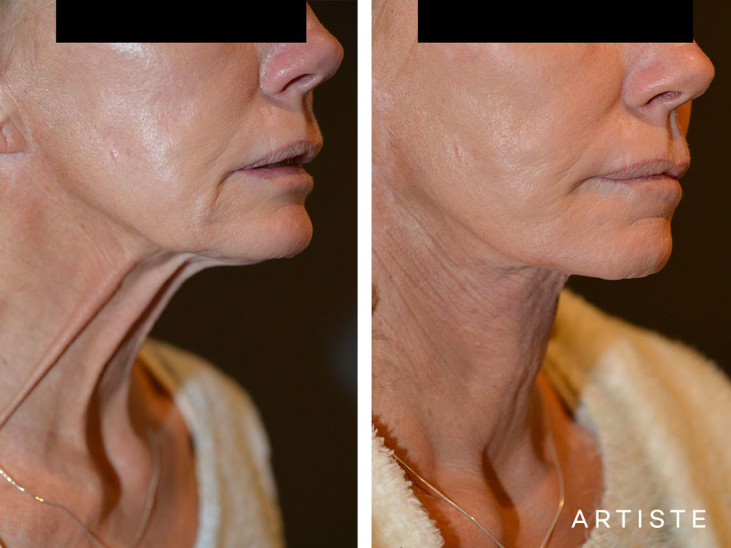 61 Year Old Neck Lift