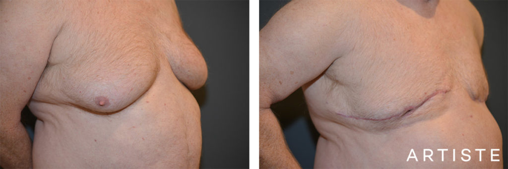 65 Years Old Bilateral Gynaecomastia Surgery