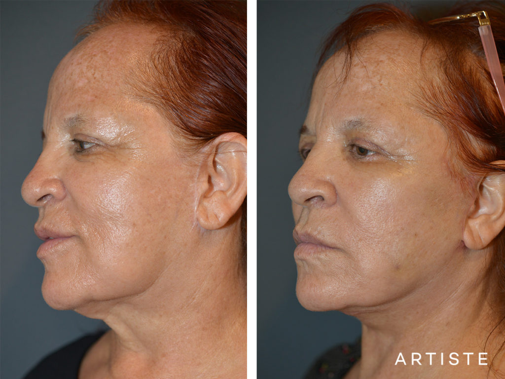 67 Year Old Neck Lift