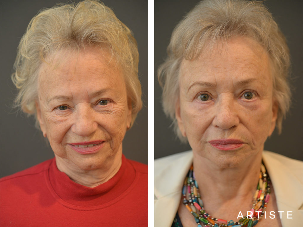 78 Years Old Neck lift and Fat Grafting