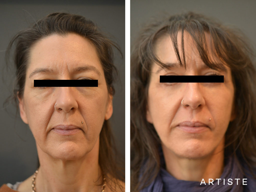 49 Year Old Short Scar Facelift + Upper + Lower Eyelids