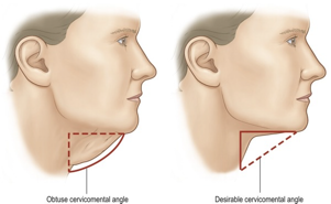 Necklift Anatomy and Skin Layers