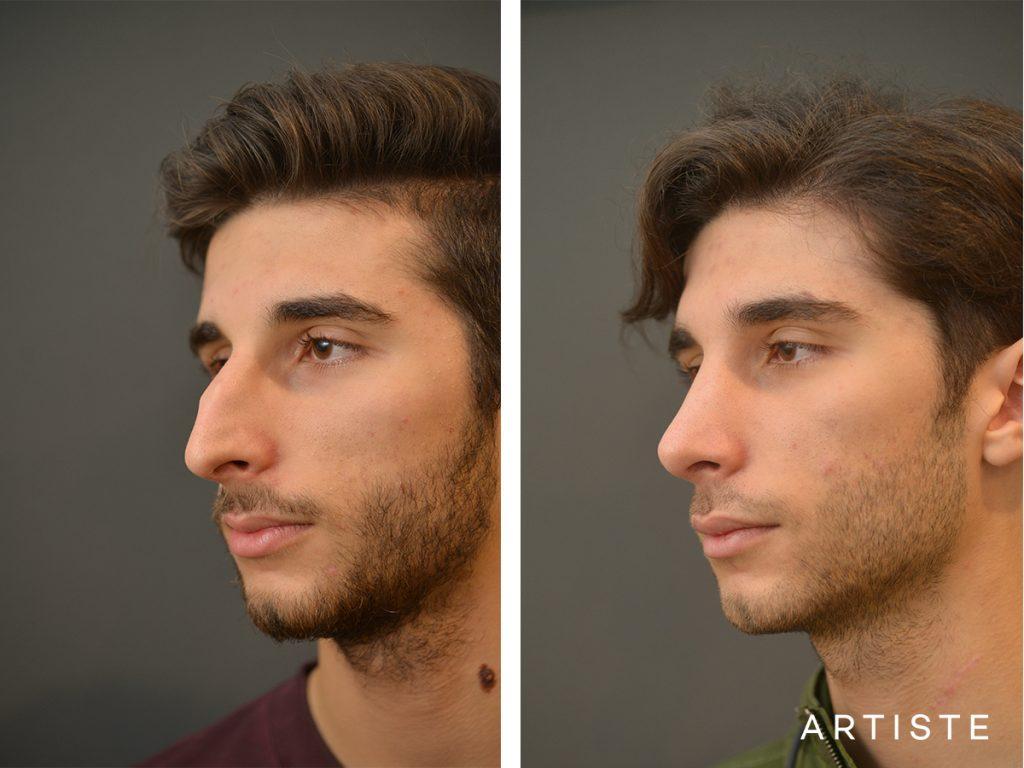 21 Years Old Male Shape Nose Rhinoplasty