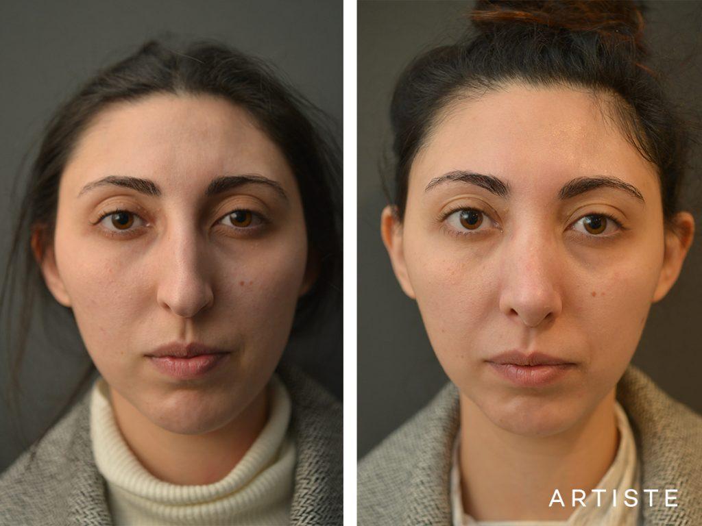 30 Years Old Female Shape Nose Rhinoplasty