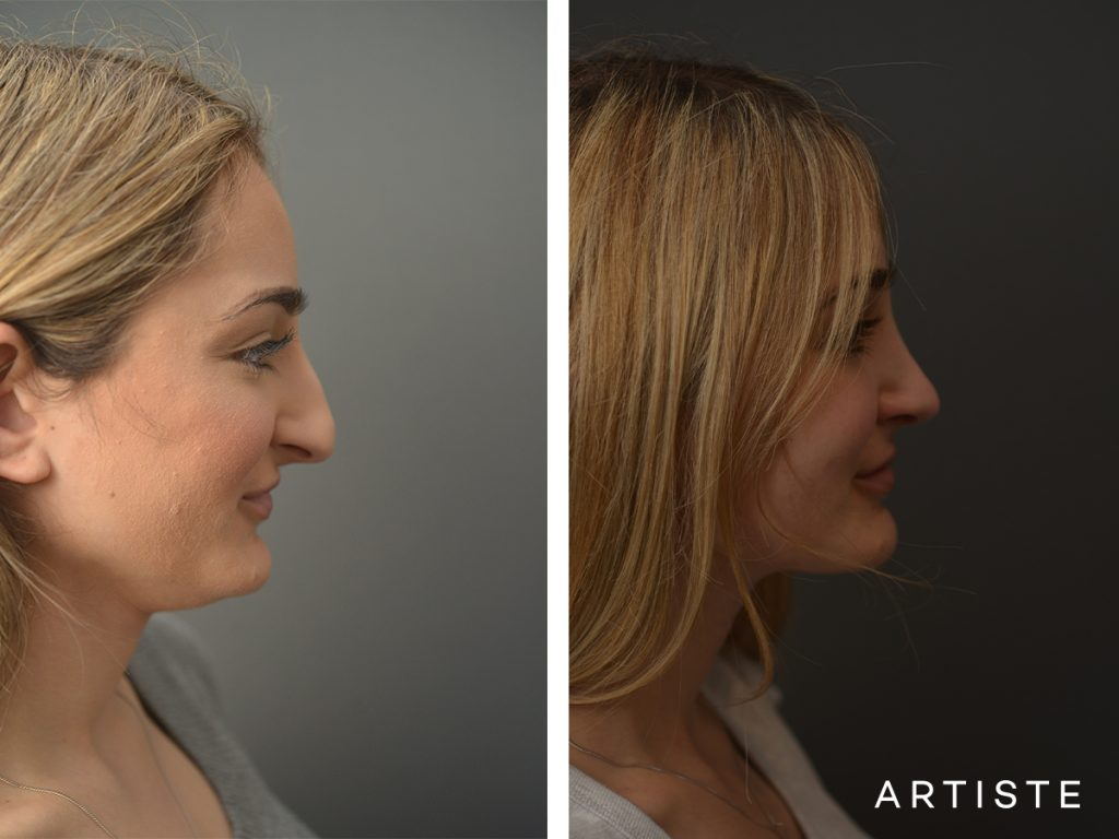 23 Years Old Female Total Nose Rhinoplasty