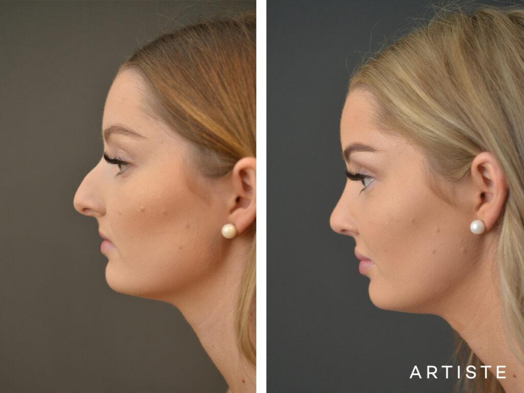 plastic surgery rhinoplasty