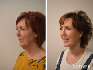 The Cost of a Facelift Surgery in Sydney